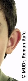 Ear surgery (Otoplasty) - Photo before - MUDr. Roman Kufa - Perfect Clinic