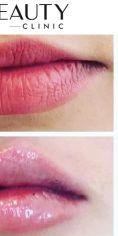 Neo Beauty Clinic - Augmentace neboli zvětšení rtů pomocí kyseliny hyaluronové dodá objem, zvýrazní kontury, vyhladí vrásky a osvěží. Efekt je okamžitý, finální vzhled rtů do 4 týdnů, kdy kyselina pojme vodu a dosáhne tak svého maximálního objemu. Foto ihned po zákroku.