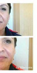 Wypełnianie zmarszczek - Kwas hialuronowy na bruzdy nosowo wargowe 1ml dr Hiacynta Kwiatkowska Klinika Beauty Medica Katowice