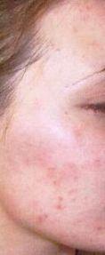 Traitement acné - laser - Cliché avant