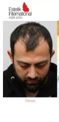 Hair Transplant - Photo before - Estetik International Health Group