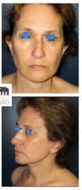 Dr Romain Viard - Patiente de 55 ans souhaitant un Mini Lifting cervico facial Résultat à 15 jours. La désocialisation est bien moindre qu'un lifting complet.