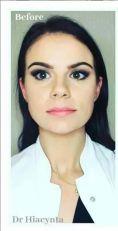 BOTOX® - Botoks na żwacze - wyszczuplenie twarzy toksyną botulinową - dr Hiacynta Kwiatkowska klinika Beauty Medica