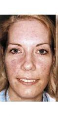Procedure laser in dermatologia estetica  - Foto del prima