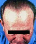 Hair Transplant - Photo before