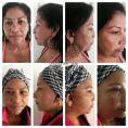 Lifting facial - Foto Antes de - Dr. Jarold Effer Taylor
