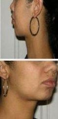 Come eliminare il doppio mento - Foto del prima - LaCLINIQUE of Switzerland®