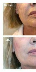 Wypełnianie zmarszczek - Wypełnianie ust i linii marionetek Katowice dr Hiacynta Kwiatkowska - Klinika Beauty Medica