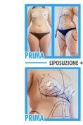 Liposuzione - Foto del prima - Dr. Pietro Loschi