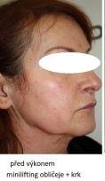 Facelift (operace obličeje), SMAS lifting - fotka před - MUDr. Filip Černoch