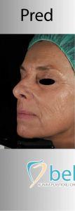 Fotorejuvenizácia /Resurfacing - Fotka pred - BELLEZA - klinika plastickej chirurgie a laserovej medicíny