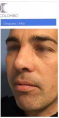 Cirugía de la nariz (Rinoplastia) - Foto Antes de - Dr. Claudio Colombo Cirujano Plástico