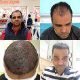 Smile Hair Clinic - Photo before - Smile Hair Clinic