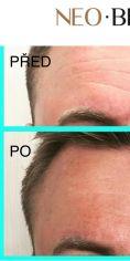 Odstranění vrásek pomocí botulotoxinu - Aplikace botulotoxinu do oblasti glabely a celého čela. Samotná aplikace nezabere více jak 10 minut a efekt vydrží cca 6 měsíců (velmi záleží na fyzické aktivitě klienta).