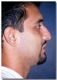 Cirugía de la nariz (Rinoplastia) - Foto Antes de - Dr. Jose Luis Valero S.