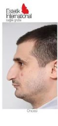 Rhinoplasty (Nose Job) - Photo before - Estetik International Health Group