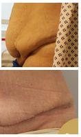 Abdominoplastika (Operace břicha) - Plastická operace břicha (abdominoplastika). Klientka před a po při kontrole po 4 týdnech od operace. Operatér: prim. MUDr. Miroslav Veliký, atestovaný plastický chirurg