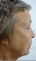Facelift (operace obličeje), SMAS lifting - fotka před - Dr. med. Jozefina Skulavik