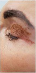 Dermaestet, s.r.o. - Odstranění nadbytečné kůže pomocí Plexr