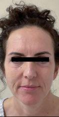 Facelift (operace obličeje), SMAS lifting - fotka před - MUDr. Patrik Richtr, Ph.D.