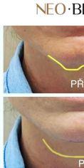 Injekční výplně - Úprava tvaru brady výplní na bázi kyseliny hyaluronové. Díky tomuto velice žádanému zvýraznění dolní třetiny obličeje a brady vyladíme celkovou harmonii tváře a dosáhneme atraktivních mladistvých kontur. Současně se vytvoří opora pro rty a zvýrazní se jejich plnost.