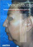 Lifting facial - Foto Antes de - Dr. Rubén Nieto Balcázar