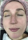 Intense pulse light Treatment (IPL) - Photo before - Aether Clinic Prague