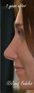 Operácia nosa (Rhinoplastika) - Fotka pred - MUDr. Jozef Fedeleš PhD.