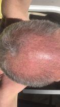 Greffe de cheveux - Cliché avant