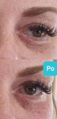 Injekční výplně - Lehká korekce pomocí aplikace injekční výplně na bázi kyseliny hyaluronové u klientky s velkými kruhy pod očima. Aplikace v oblasti očí musí být vždy velmi opatrná a šetrná, výplň musí být aplikována pod sval, ke kosti, aby místo kruhů nevznikla tzv. jelítka. Kruhy se nepodaří nikdy zcela odstranit, jde o jejich zjemnění, kdy je snadnější je pak překrýt jemným make-upem. Archiv: Plastická chirurgie Poděbrady - Prim. MUDr. Miroslav Veliký