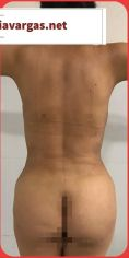 Body lifting - Photo before
