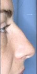 Operácia nosa (Rhinoplastika) - Fotka pred - MUDr. Marianna Zábavníková PhD.