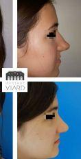 Dr Romain Viard - Résultat à 1 an d'une rhinoseptoplastie de bosse et de pointe.
