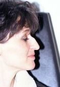 Operácia nosa (Rhinoplastika) - Fotka pred - Mediklinik