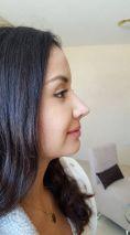 Dr. Karla Coello Vázquez - La rinoremodelación es el tratamiento más buscado en Estetik el se realiza en no más de 20 minutos con anestesia local a base de crema, con un riesgo mínimo. Consiste en  remodelar la nariz para tener una apariencia más delgada, respingada y recta. El resultado es inmediato el tiempo derecuperación es mínimo con cuidados muy sencillos, puedes continuar trabajando el mismo día.