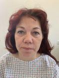 Operace očních víček (Blefaroplastika) - fotka před - MUDr. Lenka Ottová