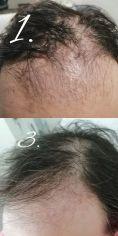 PRP – Plazma terapia (Drakula terapia) - Fotka pred - Scarlett Clinic