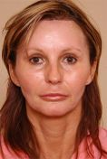 Brow lift - Photo before - Clinique of Plastic Surgery