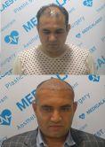 Medicalaest Greffe de Cheveux - Photo before - Medicalaest Greffe de Cheveux