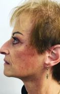 Facelift - Photo before - Prof. Dr. med. Nektarios Sinis