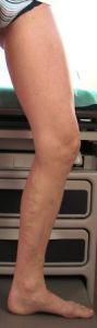 Laserowe leczenie żylaków EVLA - Zdjęcie przed - Szpital ESKULAP