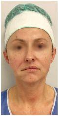 Nici liftingujące APTOS - Korekta skutków porażenia nerwu twarzowego za pomocą nici Aptos dr Bożena Jendrysik