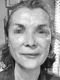 Peeling chimique - Cliché avant - Dr Hai Seroussi