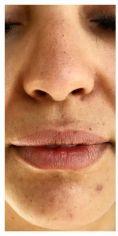 Augmentation des lèvres (acide hyaluronique) - Cliché avant - Dr Bertrand Delaoustre