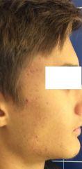 Acne laser, Cicatrici da acne laser - Foto del prima - LaCLINIQUE of Switzerland®