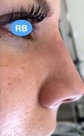 Rhinoplasty (Nose Job) - Photo before - Dr.med. Rolf Bartsch