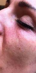 Korekcja okolicy oka - Wypełnianie doliny łez kwasem hialuronowym Katowice klinika Beauty Medica
