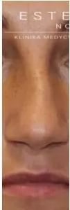 Korekta nosa kwasem hialuronowym - Zdjęcie przed - Dr Ewa Rybicka