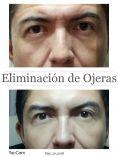 Rellenos de ácido hialurónico - Foto Antes de - Dra Pamela Galarza