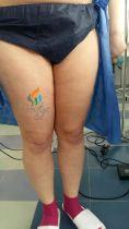 Liposukcja wibracyjna - Zdjęcie przed